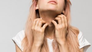 A woman with skin allergy scratching her neck