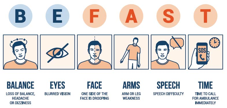 BE FAST to identify stroke and save a life. B.E.F.A.S.T. diagram graphic