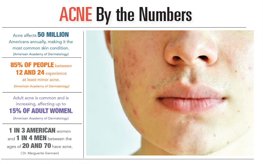 INFOGRAPHIC: Acne by the Numbers