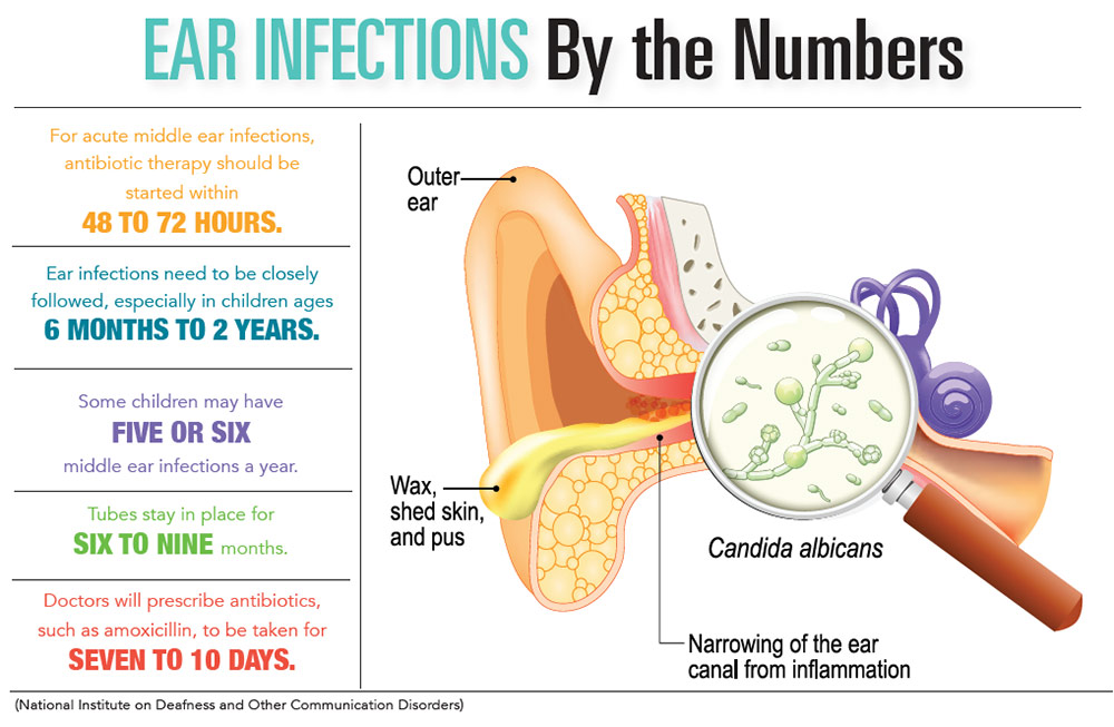 INFOGRAPHIC: Ear Infections by the Numbers