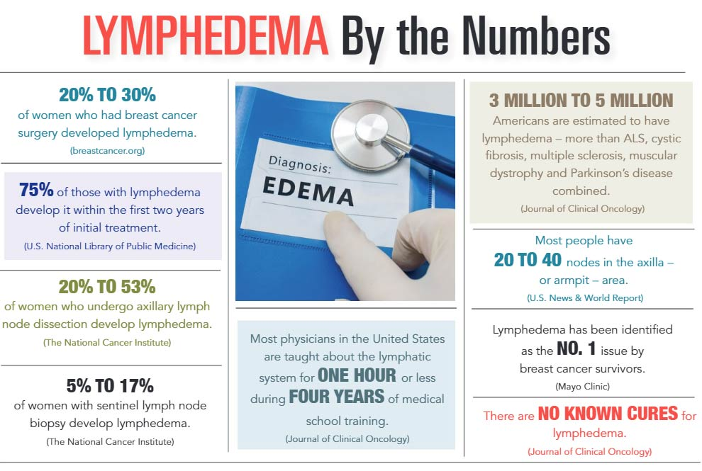 INFOGRAPHIC: Lymphedema by the Numbers