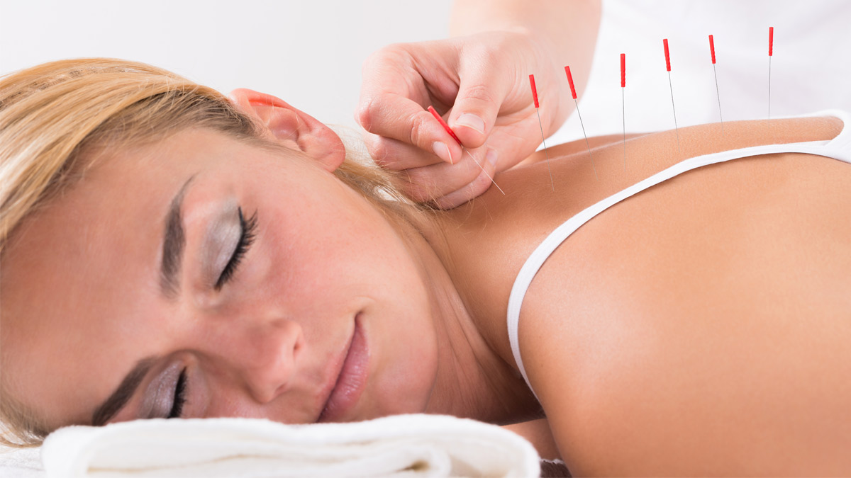 Woman receives acupuncture treatment for pain.