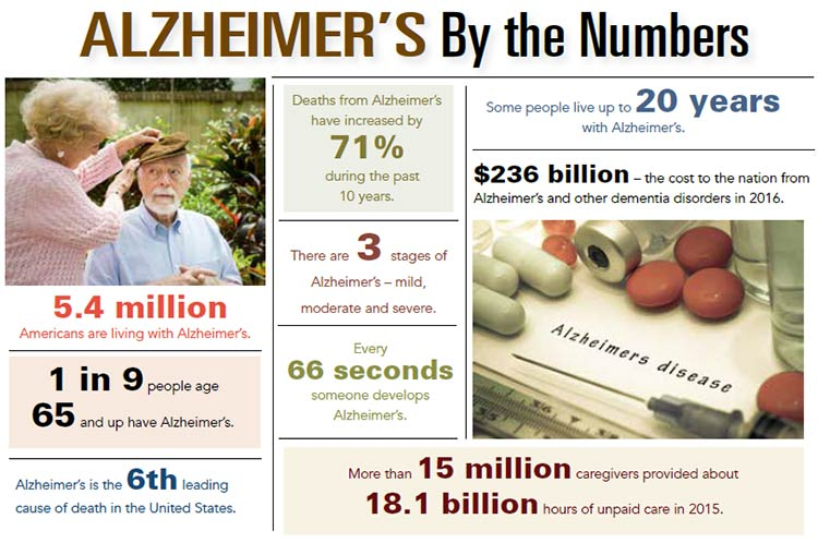 INOGRAPHIC: Alzheimer's by the Numbers