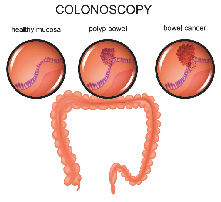 Graphic of a human colon with cross sections showing healthy mucosa, polyp bowel and bowel cancer