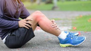 A runner massages an injury. What to do? What to do? See CORA Physical Therapy about your running injury!