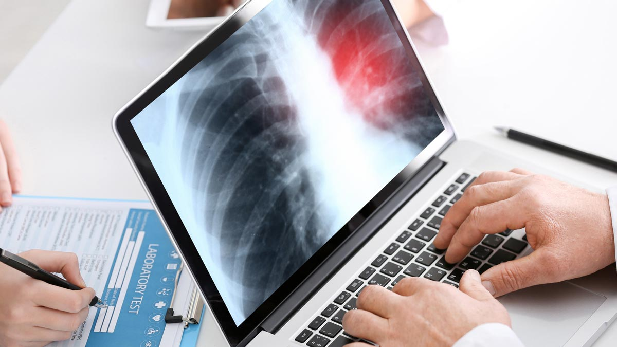 A doctor reviews a chest scan on a laptop computer