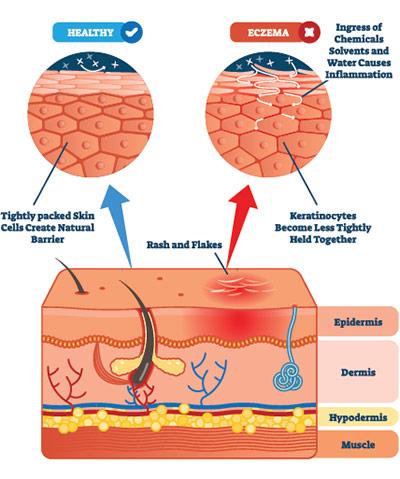 Informational illustration comparing healthy skin VS eczema.