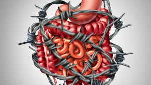 Graphic: IBS pain - the digestive tract in barbed wire