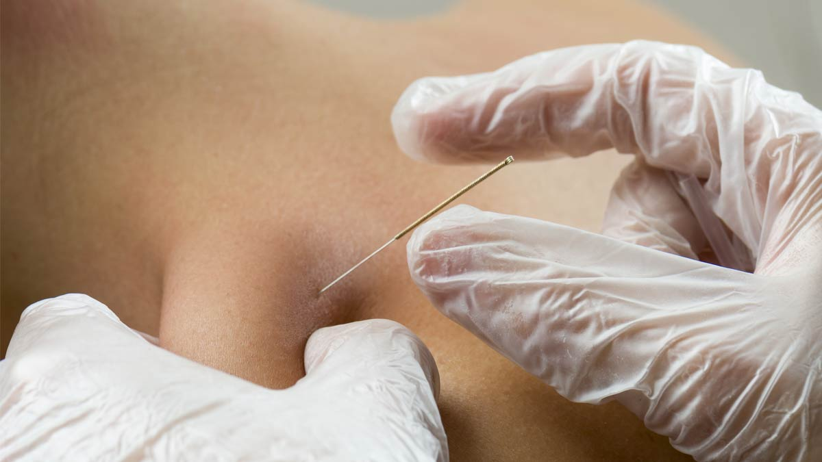 A patient receive dry needling treatment for pain