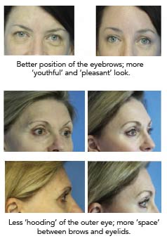 Better position of the eyebrows; more 'youthful' and 'pleasant' look. Less 'hooding' of hte outer eye, more space betweeen brows and eyelids