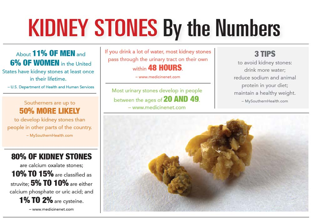 INFOGRAPHIC: Kidney Stones by the Numbers