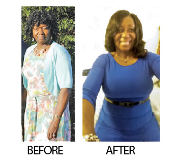 Deloris Washington before and after weight loss photos. If you change your lifestyle, the weight will stay off.