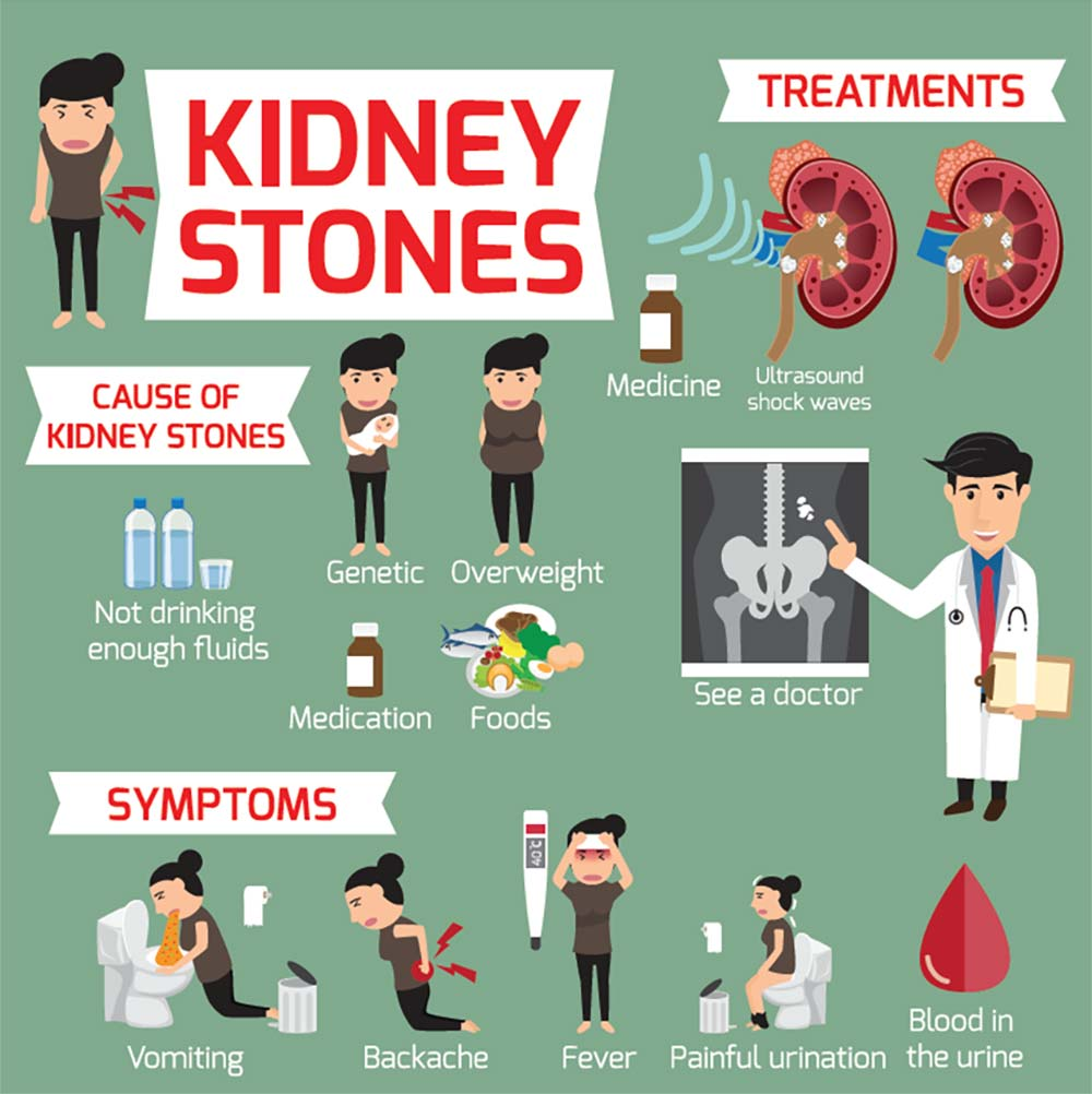 ILLUSTRATION: Kidney Stones Treatments, Causes and Symptoms