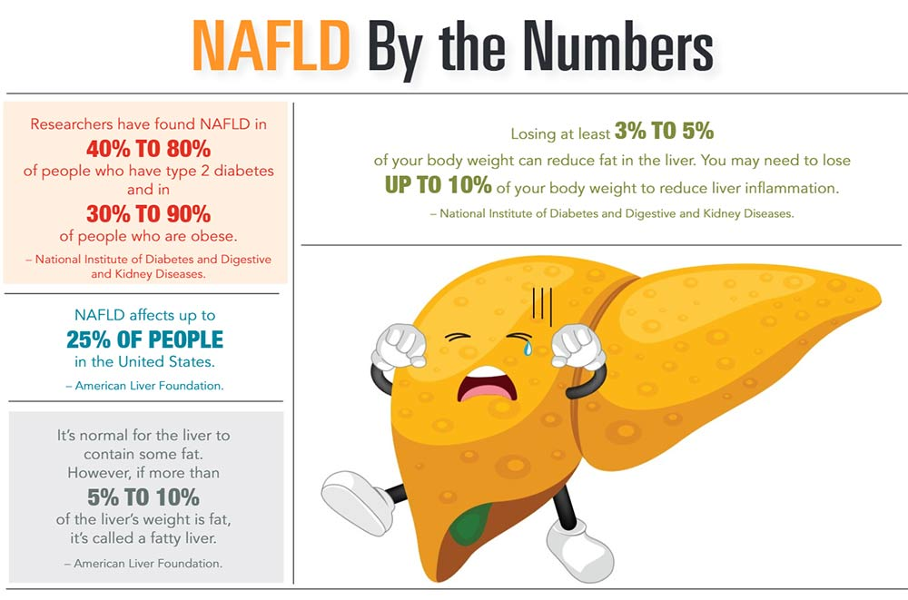 INFOGRAPHIC: NAFLD by the Numbers