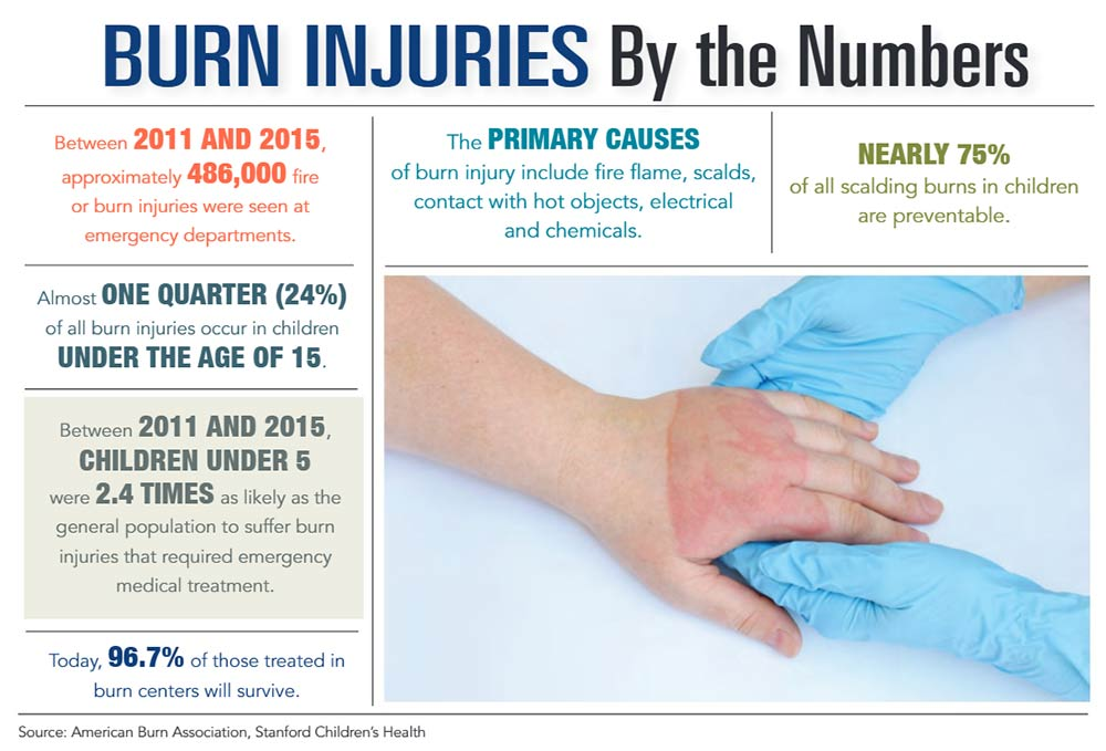 INFOGRAPHIC: Burn Injuries by the Numbers