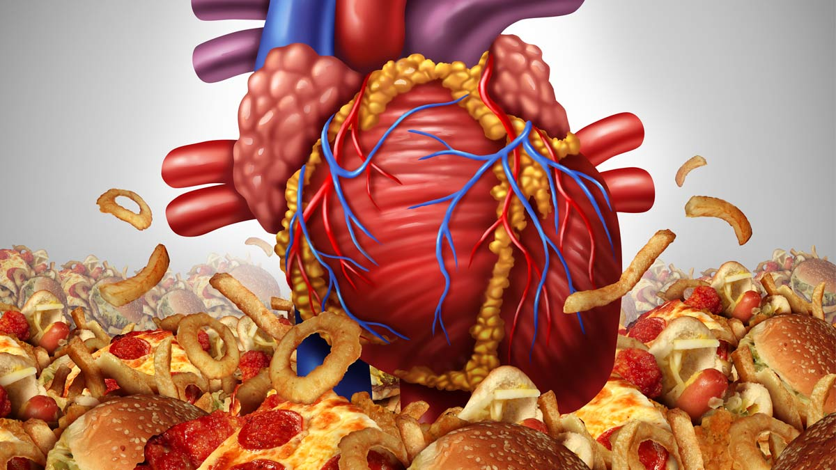 A graphic showing heart disease - a heart surrounded by pizza, burgers, onion rings and other heart-clogging foods
