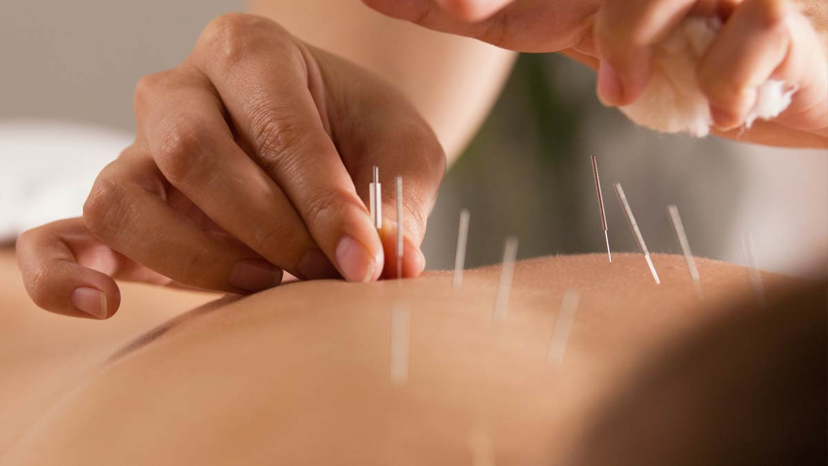 A patient receives a dry needling treatment