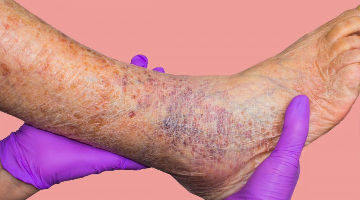 Veins visible on a patient's legs, ankle and foot.