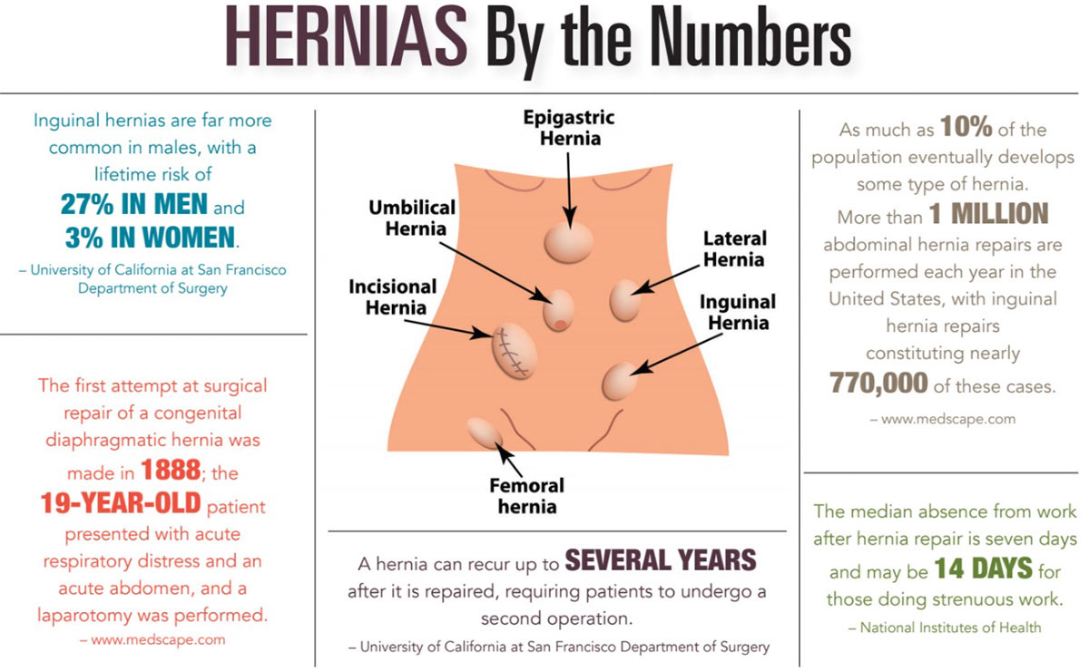 INFOGRAPHIC: Hernias by the Numbers