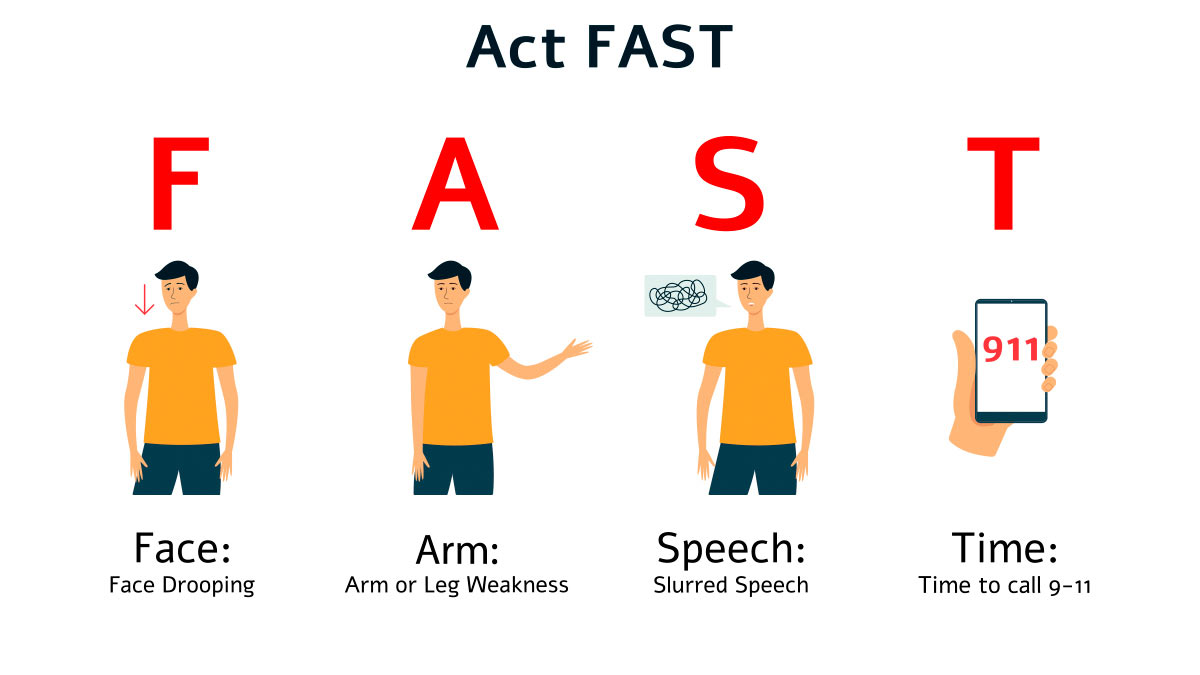 Act F.A.S.T. Stroke thumbnail image