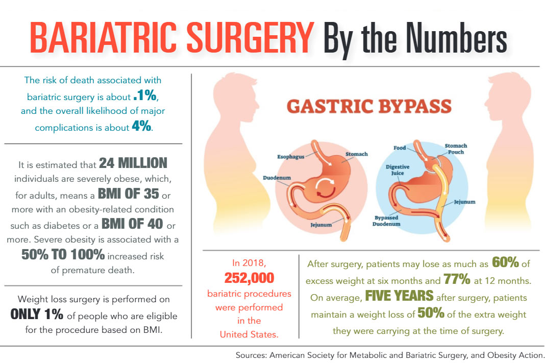 INFOGRAPHIC: Bariatric Surgery by the Numbers