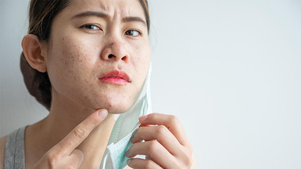 Photo of a woman noticing maskne, aka or mask acne.