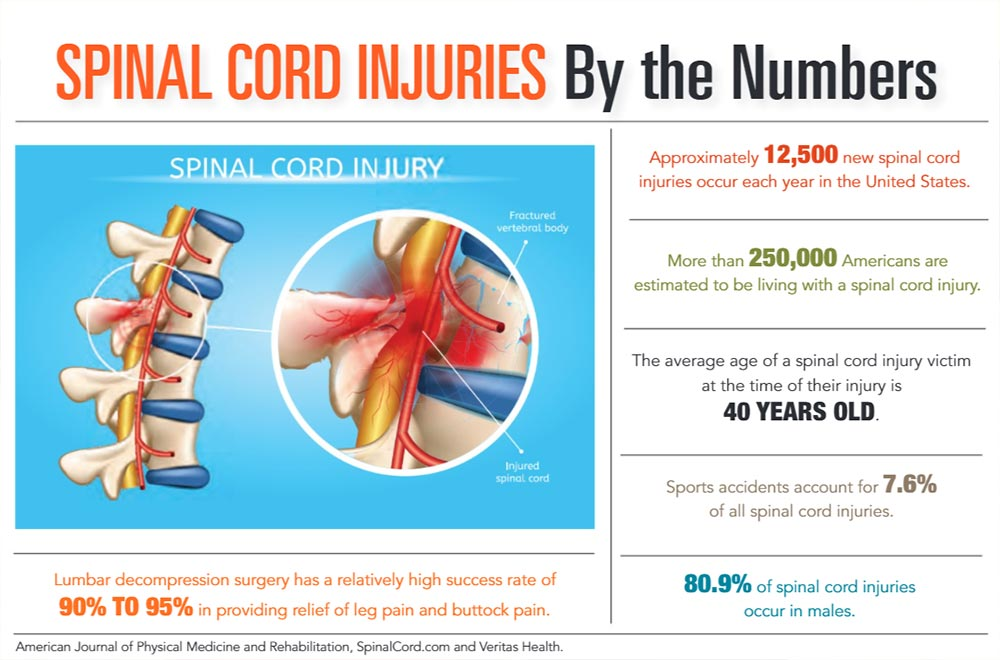 INFOGRAPHIC: Spinal Cord Injuries by the Numbers