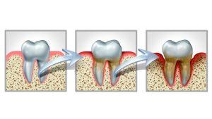 Illustration: progression of gum disease.